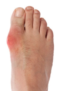 The Causes of Gout