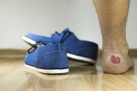 Causes for Blisters on the Feet